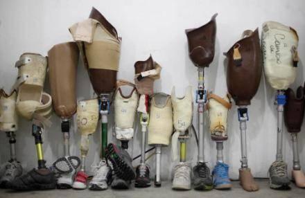 Ушлые дельцы поставляли по завышенным ценам некачественные протезы для бойцов АТО