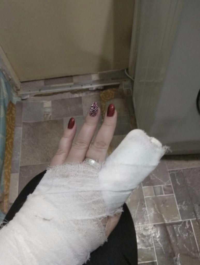 В уральском ресторане учительнице стулом отрезало палец