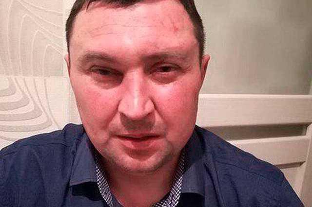 Адепты АУЕ жестоко избили депутата под Новосибирском