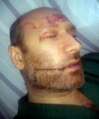 Дело о покушении на журналиста Якобсона: нападавшие известны, полиция саботирует расследование