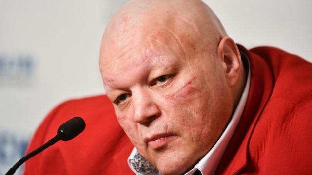 Шоумен Стас Барецкий напал на соседей российской модели в центре Москвы